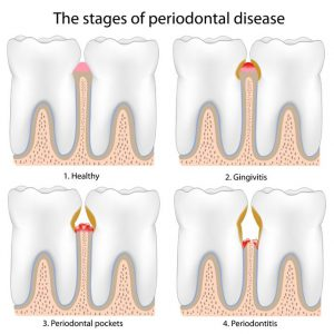 gum_disease_periodontitis_braces_thornhill_orthodontist