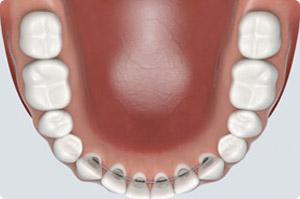 braces retainers