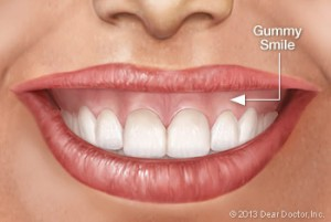 gummy_smile_york_ortho_orthognathic_surgery