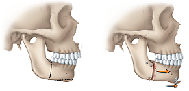 open_bite_york_ortho_orthognathic_surgery