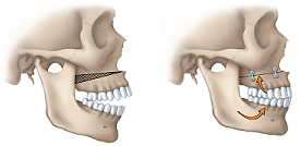 jaw-openbite_york_ortho_orthognathic_surgery